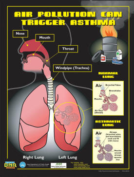 Air Pollution Can Trigger Asthma Poster